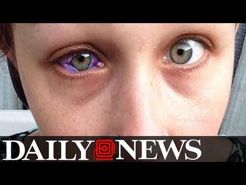 Model gets eye tattooed and it goes horribly wrong