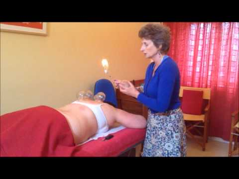 Fire Cupping with Cornelia Davies