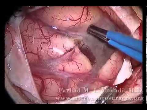 brain surgery removal of metastatic tumor watch the video