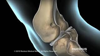 ACLInjury&SurgeryatCookChildrens