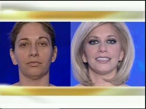 face lift, λιποαναρρόφηση βλεφαροπλαστική ανόρθωση