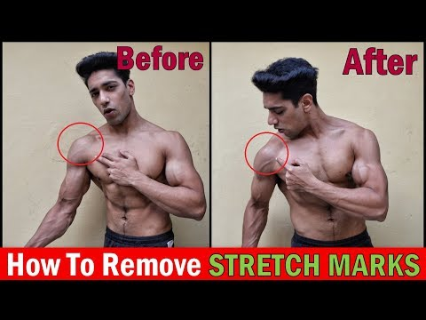 Fat burner - How to Get Rid of Stretch Marks  3 Easy Ways & Tips to Remove STRETCH MARKS