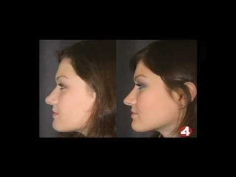 Top 5 Plastic Surgeries - #2 - Rhinoplasty - Nose Job