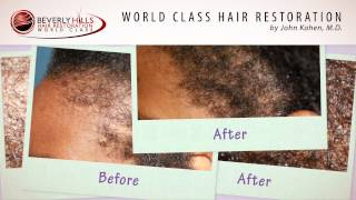 African American Hair Transplant treating Traction Alopecia at Beverly Hills Hair Restoration