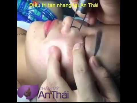 Video điều trị tàn nhang tại Thẩm mỹ An Thái