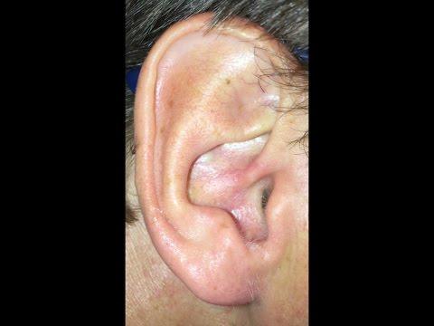 Kiedy coś cię swędzi w uchu i postanawiasz to sprawdzić