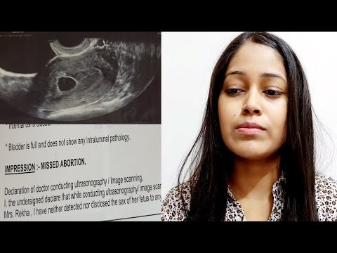 My Ultrasound Report says Missed Abortion | No Heartbeat |Mr. and Mrs. Prince