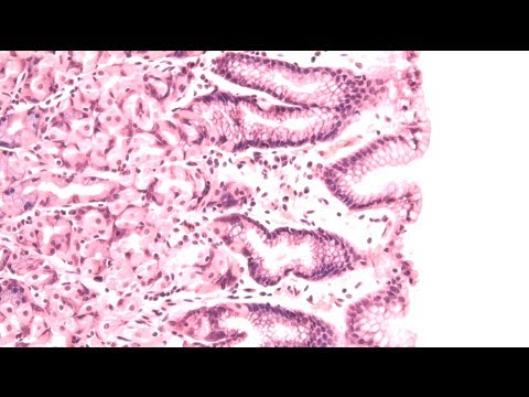 Gut Responses: Microbes, Inflammation, and Cancer