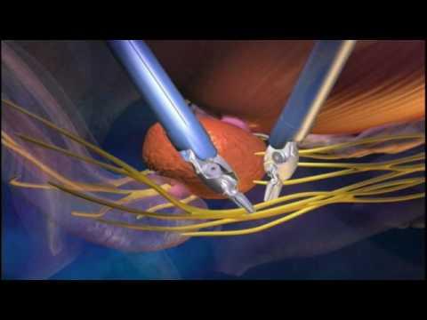da Vinci Urology Robotic Surgery