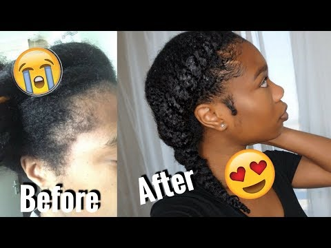 HOW I DESTROYED MY EDGES + HOW I GREW MY EDGES BACK