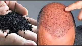 In this video I am sharing with you a very effective home remedy for baldness, hair thinning and hair fall in men / women. This remedy will stop hair fall instantly and will help in hair regrowth. Main ingredient of this hair regrowth remedy is kalonji. Kalonji is rich in iron and potassium and it contains 15 types of amino acids. Kalonji stimulates hair regrowth and treats baldness and hair fall very effectively. Second ingredient of this remedy for hair loss is olive oil. Olive oil is rich in vitamin e and essential fatty acids for hair. Last ingredient of this hair regrowth remedy is lemon. Lemon unclogs the hair follicles and stimulates hair growth. How to make this Hair regrowth remedy. Take 2 spoons of kalonji seeds and roast them for 2-3 minutes, grind them to make a fine powder. Now add 2 spoons olive oil and the juice of half a lemon in it. Mix all the ingredients very well. How to use this remedy- Massage your scalp with this mixture and leave it on for 1 hour. After 1 hour shampoo your hair. Use this home remedy 3-4 times a week, hair will start growing again. How to regrow hair on bald head, home remedy for hair regrowth, ganje sir par baal ugayen, kalonji oil for hair, bald head treatment, bald head hair growth, home remedy for hair thining, how to regrow hair naturally for men, how to regrow hair naturally for women, hair regrowth for men and women, kalonji for hair regrowth, balo ka girna roke, upay, nuskha, बालों को तेजी से लम्बा मोटा और घना बनाए ये जादुई तेल-https://youtu.be/IYDPX1XwdqkGET LONG THICK HAIR SUPER FAST-https://youtu.be/poiQ8vtlSJwबालों को दोबारा उगाये, बालों को झड़ने से रोके बालों का काला करे-https://youtu.be/z4bCzerxtHIHow To Stop Hair Fall instantly,Get Long hair,Thick Hair & Fast Hair Growth-https://youtu.be/dRYwCGbmuEo
