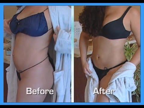 Abdomen and Waist- Smartlipo-Tumescent Liposuction_A plasztikai sebészet kulisszatitkai. Legeslegjobbak
