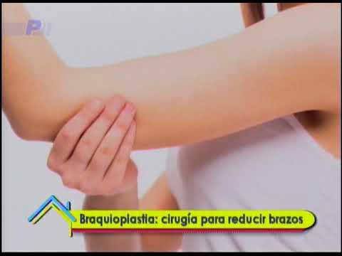 Braquioplastia: cirugía para reducir brazos