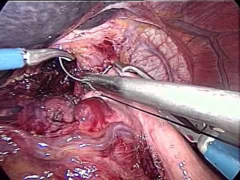 Achalasia Treatment - Heller Myotomy And Dor Fundoplication In Laparoscopy