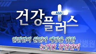 눈꺼풀에 여드름이 났다고요? - 안검염의 원인과 예방을 위한 눈꺼풀 청결관리 미리보기