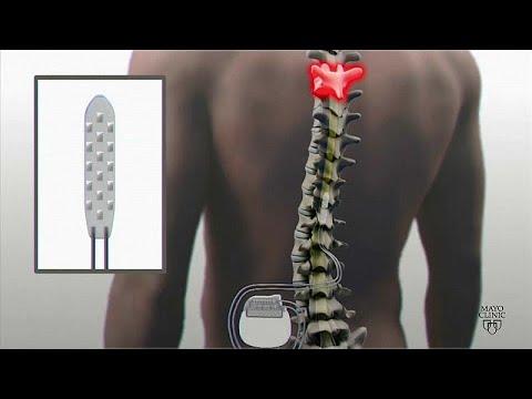 Dank Implantat: Elektrostimulation bringt Gelähmten zum ...