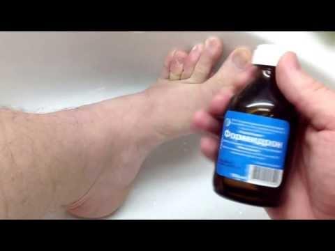 Как избавиться от потливости и запаха ног в домашних условиях