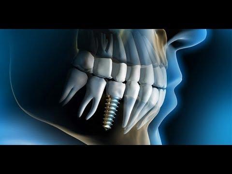 Implante Dentário - Passo a Passo - Cirurgia Completa