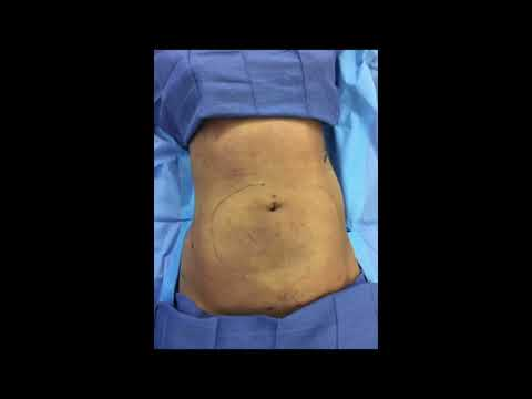 Breast Augmentation with Liposuction of the Abdomen, Love Handles and Back.