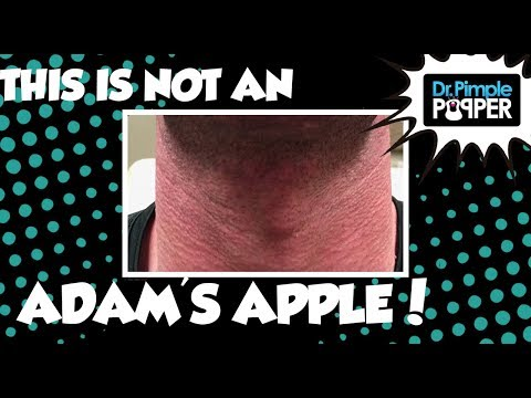 Adam's Apple Cyst