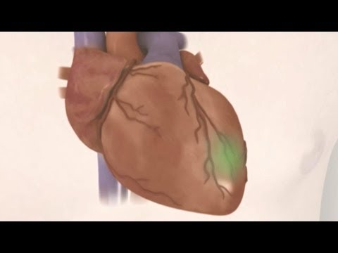 Preventing coronary heart disease