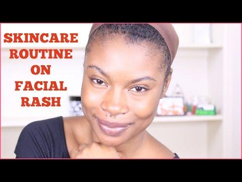 SkinCare Routine  Quick Way To Get Rid of Rash