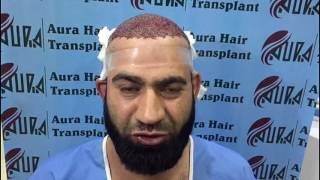 Javed Ahmed - Client Reviews (Aura Hair Transplant)