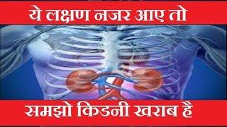 ये लक्षण नजर आए तो समझो किडनी खराब है. yah lakshan najar aye to samajo kidney kharab hai,यह लक्षण नजर आए तो.