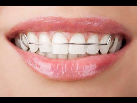 Как ставят пластины на зубы? Больно или нет?