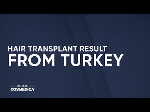 custo-de-transplante-de-cabelo