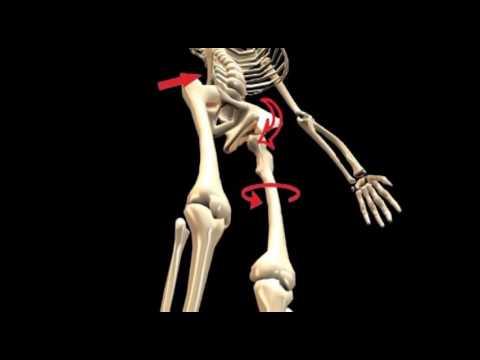 Correcting Spinal Posture with Custom Orthotics