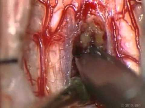 Spinal Cord Intramedullary Cavernous Malformations- Surgical Approaches - Video 1