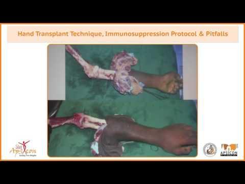 Trailer Hand Transplant Technique, Immunosuppression protocol & pitfalls