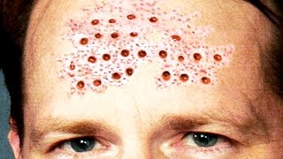 RESTMORE from Amazon:  http://www.BuyRESTMORE.comDallas Dermatology:  https://www.youtube.com/allstarsurgery?sub_confirmation=1Blackheads Under Microscope:  https://www.youtube.com/channel/UCz8palJgRvV4WKHVCtJjVuQIn tis video we see pimples under the microscope at 0:10.  Tonsil Stones at 0:51.  Dr. Sandra Lee discussion at 1:26.  Dallas dermatology at 1:45 with cyst popping, skin tags and ingrown nails.  RESTMORE discussion at 2:14.  Trypophobia at 2:54.  A special appearance from Camey of Camey's Corner at 3:22.Subscribe:  https://www.youtube.com/c/GreatestMedicalCaseStudies/?sub_confirmation=1Warning:  This video contains educational medical content that may not be preferred by all viewers.  Please use discretion when watching this video.  Furthermore, take no medical advice from this channel.  Consult a doctor for medical advice.  We are not doctors and we are not your doctor!  Comedone Extractor Tool from Amazon:  http://amzn.to/2dI8eeHWorld's Greatest Animals:  https://www.youtube.com/channel/UC7lZW4rHx7zcclvlsSdfTew?sub_confirmation=1Twitter:  https://twitter.com/asboxofficeFacebook:  https://www.facebook.com/freakymedicalhttp://www.instagram.com/cystburstingTrypophobia and Fear of Holes:  https://www.youtube.com/watch?v=OlOjxrSHhdI&list=PL2x0yQtfApPDGX98G_i3sK5xoeBb8KsrqJoin the ScaleLab Network:  http://scalelab.com/apply?referral=8164Please use our videos as a reminder to always wear gloves when doing a home medical procedure.  Wash your hands and keep a sterile environment.  * We are not doctors.  Always consult a real medical professional.  In an emergency, go to the hospital!  https://www.youtube.com/user/greatestmedicalComedone Extractor Kit:  http://www.amazon.com/dp/B00KP5TS4Y/?tag=wrestling911c-20Blackhead Extractor:  http://www.amazon.com/dp/B00QP64BXK/?tag=wrestling911c-20Blemish Remover Kit from Amazon:  http://amzn.to/2spdpbBRESTMORE natural Sleep Aid:  http://www.buyRESTMORE.com
