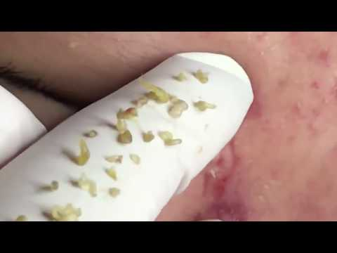 acne severo extraccion - severe acne extractions on face hd 2018