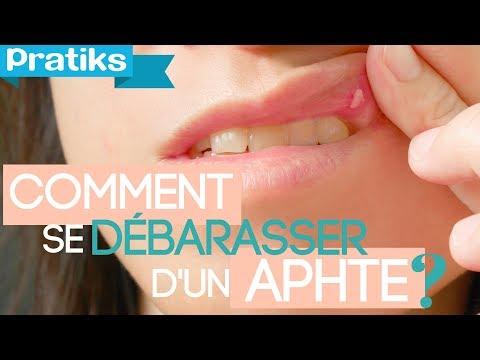 comment appliquer clou de girofle sur la dent