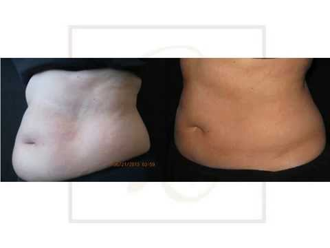 Belly Fat Loss Before & After Coolsculpting