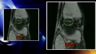 Eye on NY- Dr. Max Gomez looks at stem cell alternative to surgery