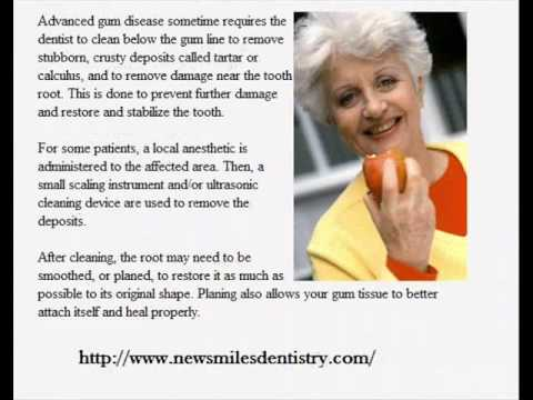Oral piercing side-effects on your dental health