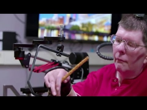Paralysed man moves arm after medical breakthrough