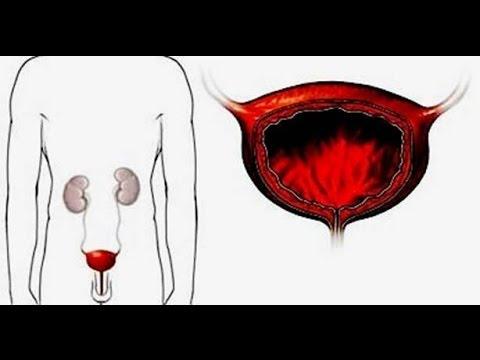Воспаление мочевого пузыря у женщин и мужчин, лечение. Лечение энуреза у детей и взрослых