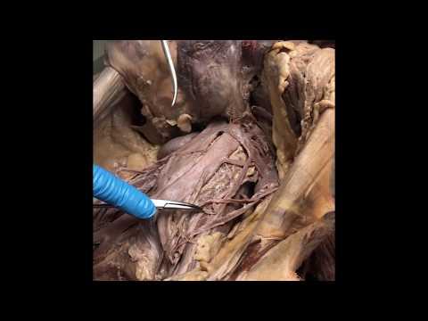 Abdominal Vasculature Overview