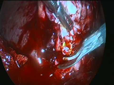 Gallbladder Empyema And Liver Abscess. Laparoscopic cholecystectomy and drainage of the abscess.