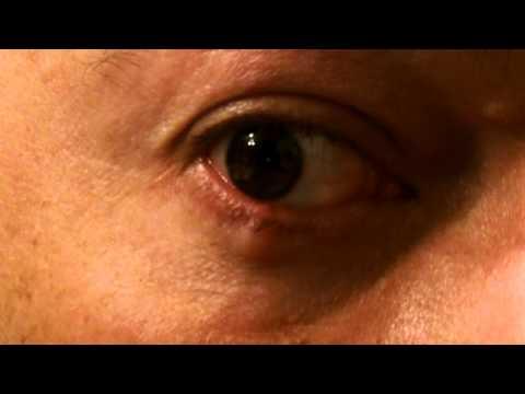 gross eye pimple pop