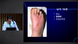 말초혈관질환 미리보기
