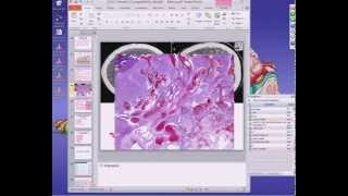 Medical School Pathology, 2013 Season, Session #45: Blood Vessels-I