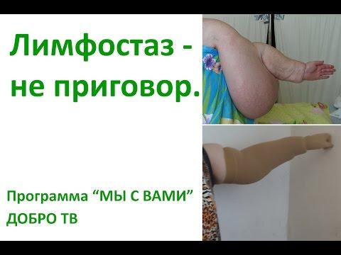 Отзыв о лечении в НПЦ ЛИМФА
