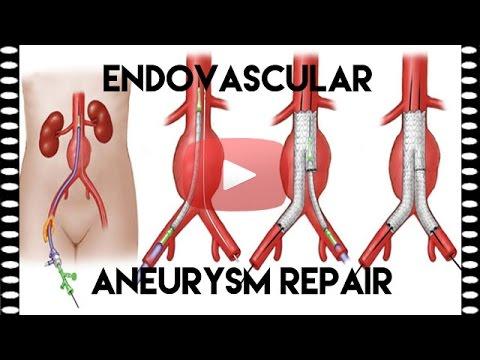 What is EVAR or Endovascular Aneurysm Repair | Medical Coding Tips