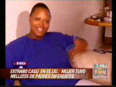 INCREIBLE: Una mujer dio a luz a una pareja de mellizos de padres diferentes.