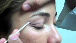 Video Dr. Jeffrey Epstein - Mark-Up for Upper Eyelid Blepharoplasty - Female Patient MP3, 3GP, MP4, WEBM, AVI, FLV September 2018